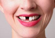 zub-vypal